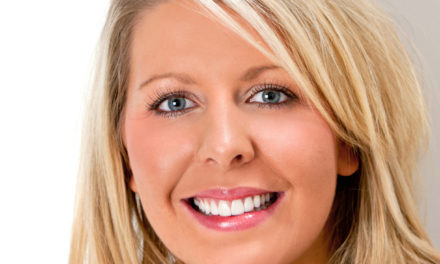 Eeh by gum, top North East dentist boosts smiles with gum lift