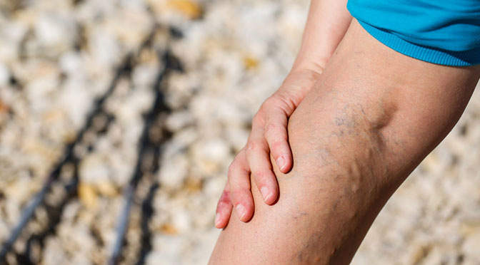 Redefining Severity of Varicose Veins to Save Cost