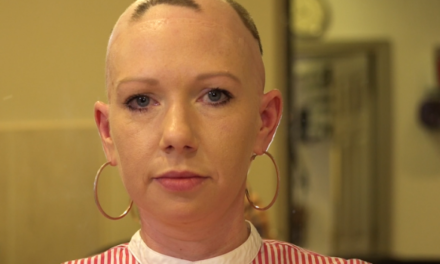 MyNewHair Charity Helps Alopecia Sufferer Regain her Confidence