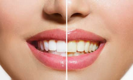 What Causes Teeth To Stain?