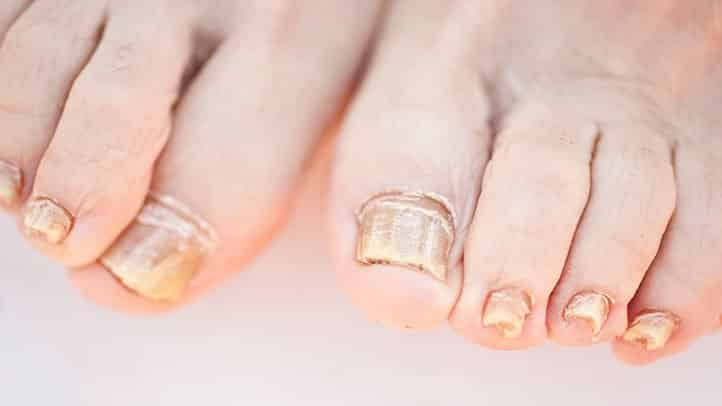 Want to get rid of the Nail Fungus? Point to Consider!