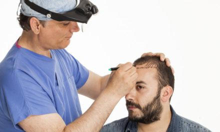 More About Recovery, Risks And Alternative Options To Hair Transplants