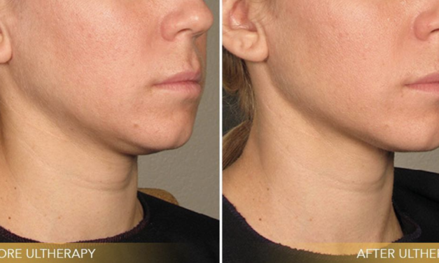 Your Questions About Ultherapy Answered