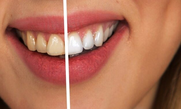 Ways to Whiten Teeth Fast, According to Dentists
