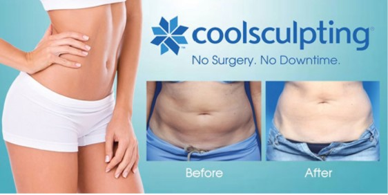 What Makes CoolSculpting The Best Fat Loss Treatment in 2021