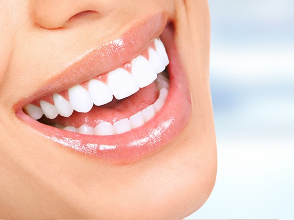 """The Smile With A """"Wow"""" Factor: Hollywood Smile"""